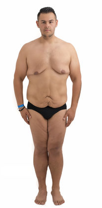 Does A Compression Top Hide Gynecomastia